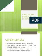 Carcinoma de Trompa de Falopio2