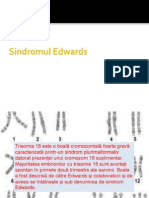 Sindromul Edwards