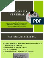 Angiografía Cerebral Final