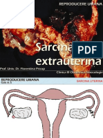 Curs 5 - Sarcina Extrauterina