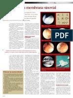 CIRUGIA - Patologia de La Membrana Sinovial