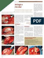 CIRUGIA - Traumatologia - Reparacion Cartilago Articular