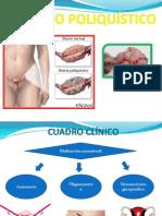 Ovario Poliquístico - Diapo Macavilca