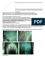 Caso de Oncologia 06-06-13
