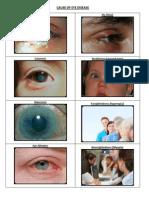 Eye Diseases2