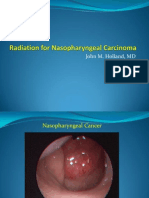 Radiotherapy for Nasopharyngeal Cancer