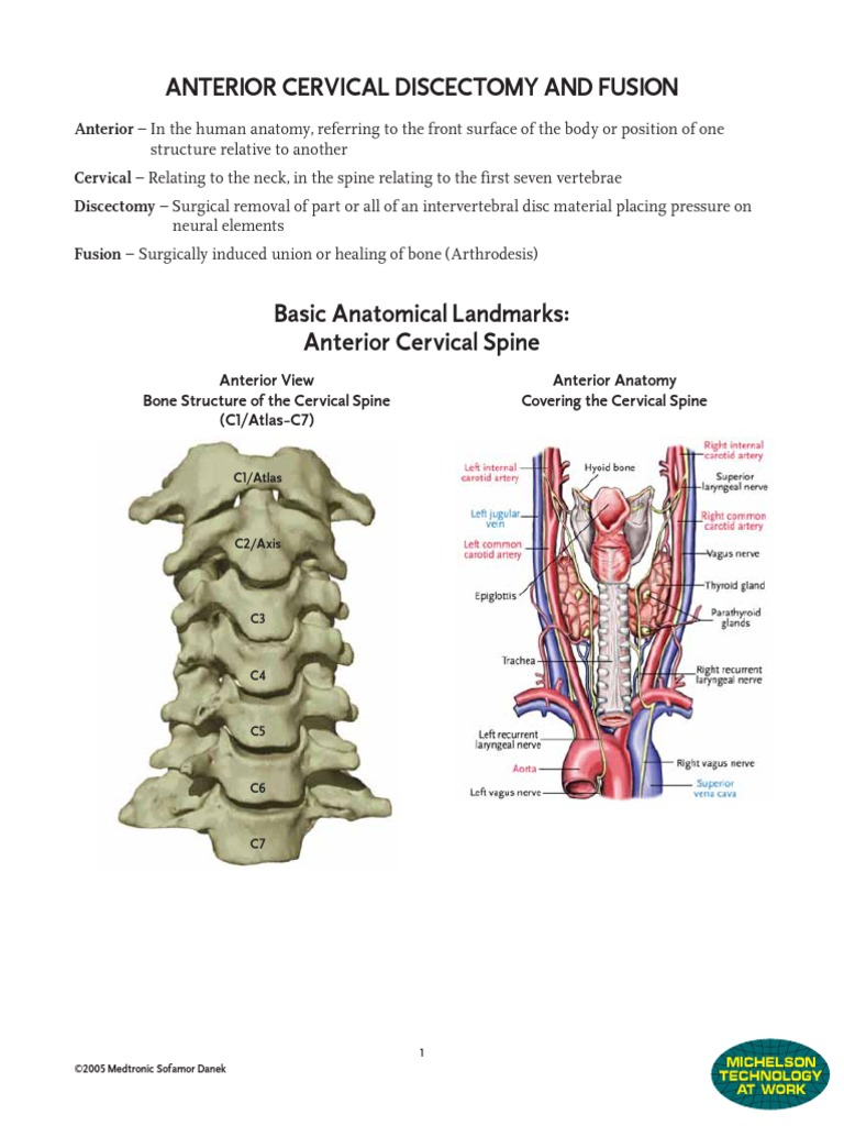 Acdf Cervical | Vertebra | Vertebral Column