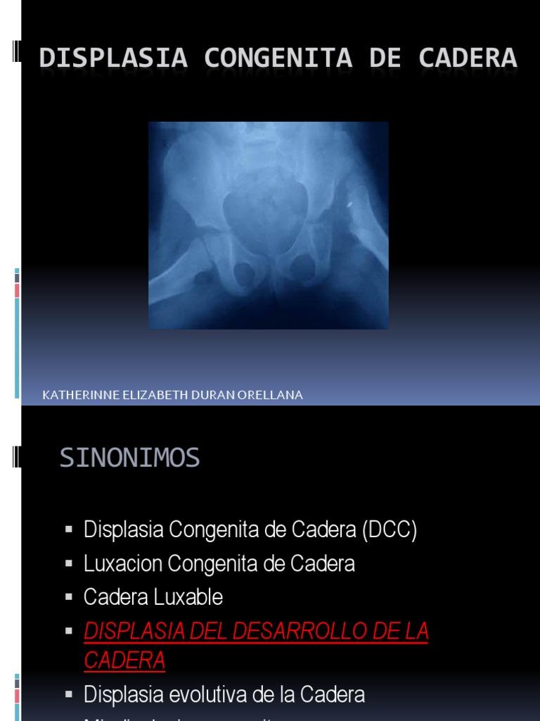 Displasia Congenita De Cadera Pdf