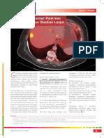 18_212Berita Terkini-S-1 Untuk Kanker Pankreas Metastatik Atau Stadium Lanjut