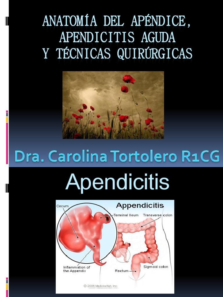Anatomia Del Apendice y Tecnicas Quirurgicas