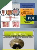 Casos Clínicos de Leucorrea