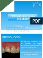 Fractura de Corona