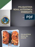 Poliquistosis Renal Del Adulto