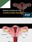 Benign Lesions of the Uterus and Adnexa 2012