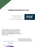 Tumores Malignos de La Piel