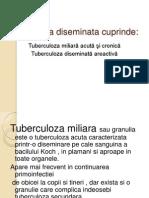 Miliara TBC