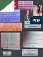 Como Calcular La Frecuencia Cardiaca