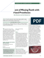 Replacement of Missing Teeth with Fixed Prostheses
