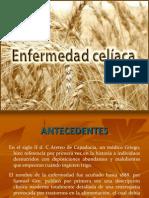 enfermedad celiaca 2013