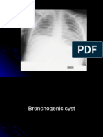 6th y chest x-ray