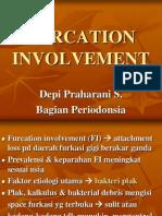 Furcation Involvement 2