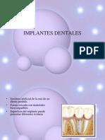 implantesdentales-100107100224-phpapp01