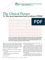 V1 - The Most Important Lead in Inferior STEMI