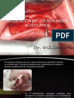 Alveoloplastia y Regulacion de Los Rebordes Alveolares Ppt