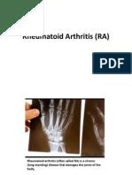 Rheumatoid Arthritis (RA) PD.ppt