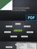 Nódulos Pulmonares Múltiples (NPM)