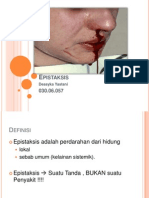 Presentasi Epistaksis