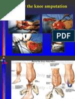 Below the Knee Amputation