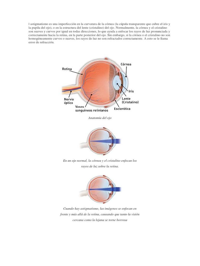 l Astigmatismo Es Una Imperfección en La Curvatura de La Córnea