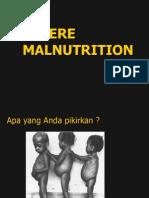 Severe Malnutrition_ GIZI Print
