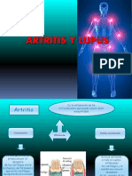 Artritis y Lupus