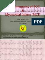 Basic Emergency of ECG & Myocardial Infarct