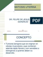 miomatosisuterina2-120201220624-phpapp01