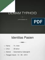 Demam Typhoid Resus