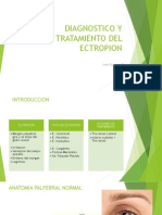 Diagnostico y Tratamiento Del Ectropion