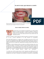 Inconvenientes Dento Facial Que Produce El Chupete