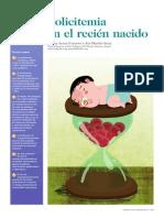 Policitemia Neonatal 2012