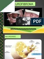 Neuro Fibroma