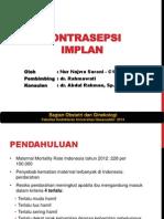 Kontrasepsi Implan