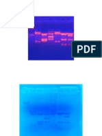 Gambar DNA Fingerprinting