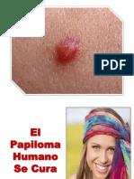 Sintomas Del Papiloma Humano, Sintomas de Papiloma Humano, Virus Papiloma Humano Cura