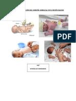 Cuidados y Curación Del Cordón Umbilical en El Recién Nacido