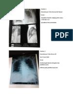 Gambaran radiologi spondilosis thoracolumbal
