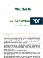 Hepatomegalia- Esplenomegalia