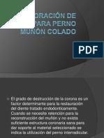 Elaboración de Patrón Para Perno Muñón Colado.10 - Copia