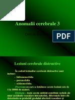 Anomalii cerebrale 3
